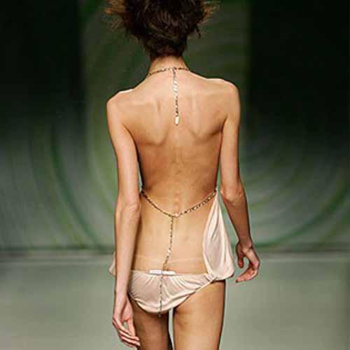 delgadez-anorexia